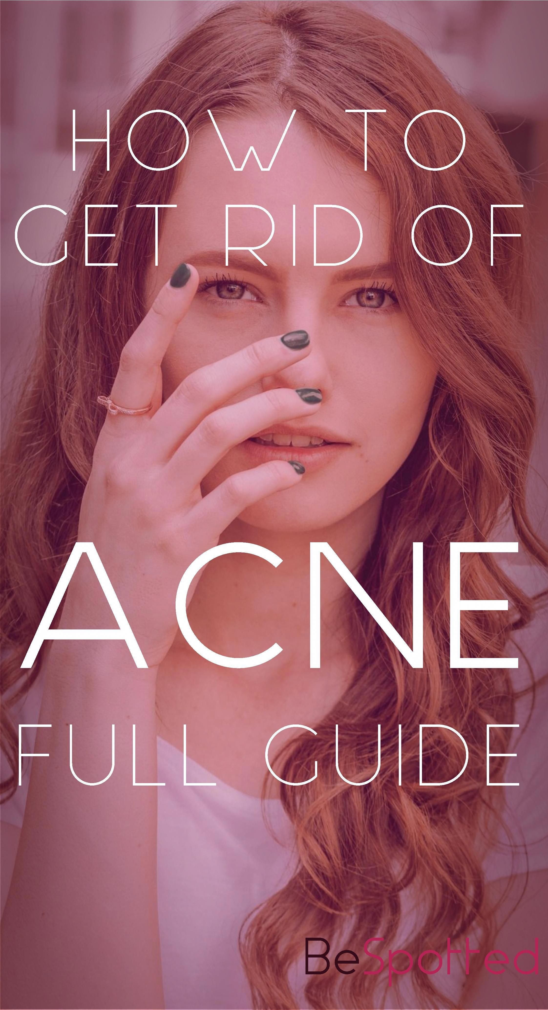 how to get rid of baby acne howtogetridofacneovernight