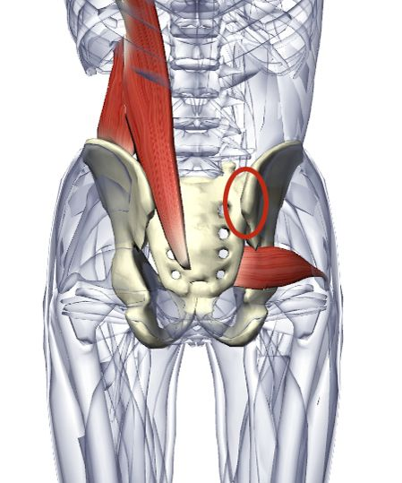 Body Blogg: Sacroiliac joint dysfunction