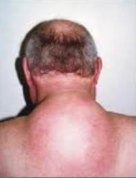 Big Hard Lump on Back of Neck | Neck Lump | Big, Cancer, Get