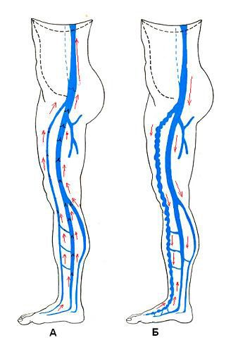 схема лечения варикоза