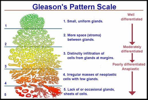 tratamiento cancer de prostata gleason 6