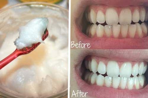 Kokosöl Bei Zahnprobleme Kokosnussöl Kann Fast Alle Zahnprobleme