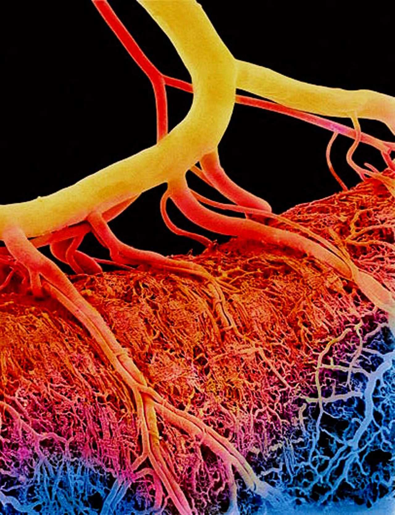 Blood Vessels Look Like Tree Roots Destroying The World