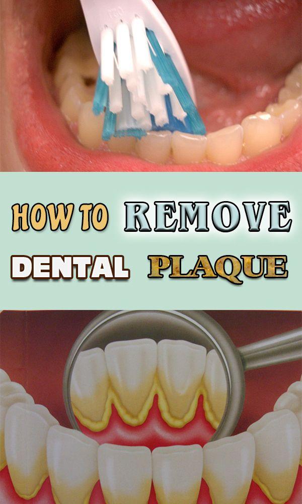 Dental Plaque, Dental, Oral