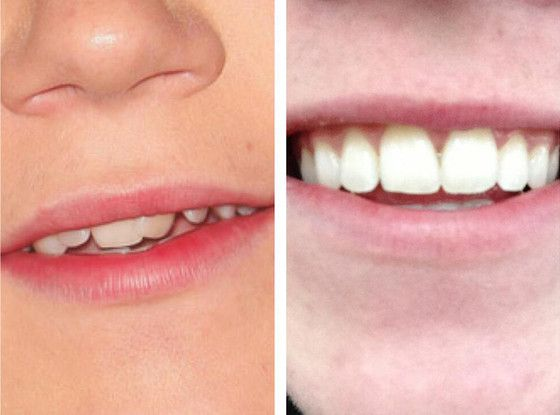 1d S Niall Horan Gets His Braces Off See Before After Niall