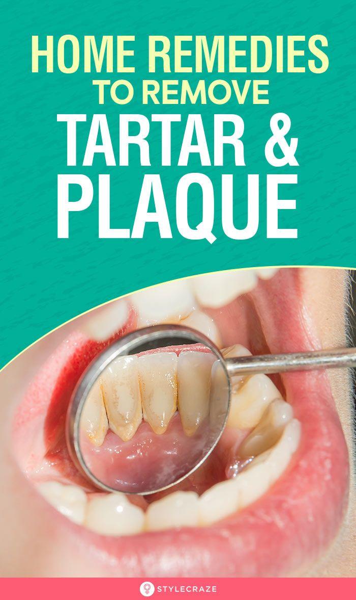 15 erstaunliche Hausmittel, um Zahnstein und Plaque von den Zähnen zu entfernen   – Toothpaste & Oral Hygiene