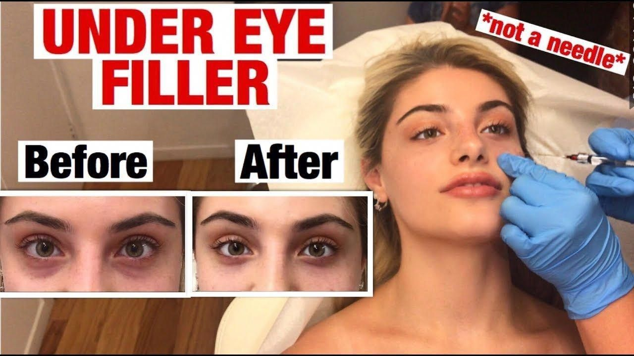 UNDER EYE FILLER INJECTION for dark circles and bags ...