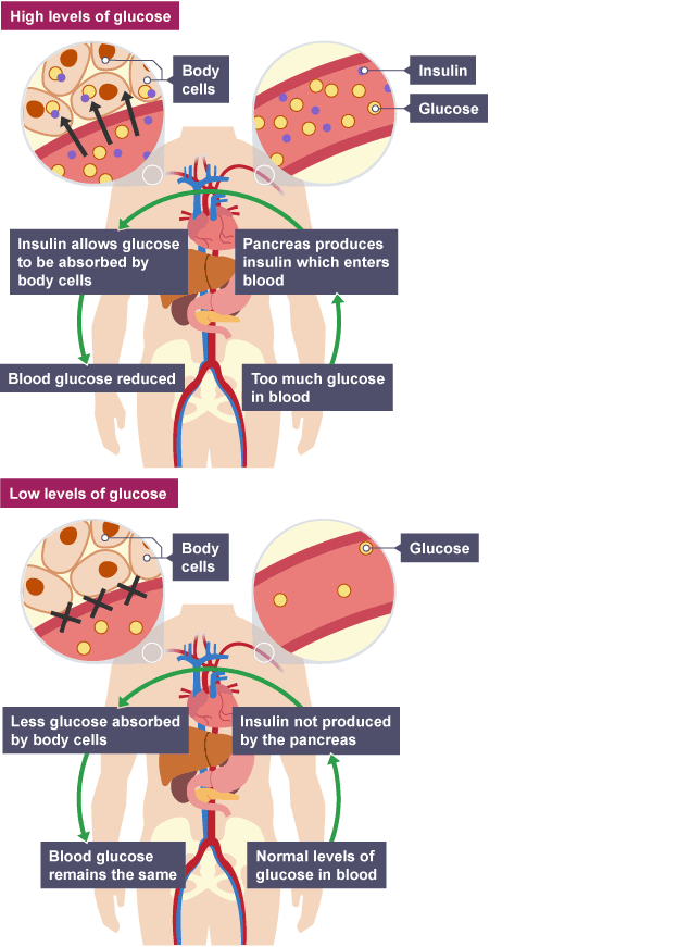 Too much glucose. Pancreas produces insulin, body cells absorb ...