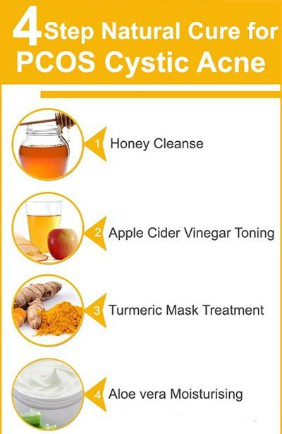 home remedies for severe acne