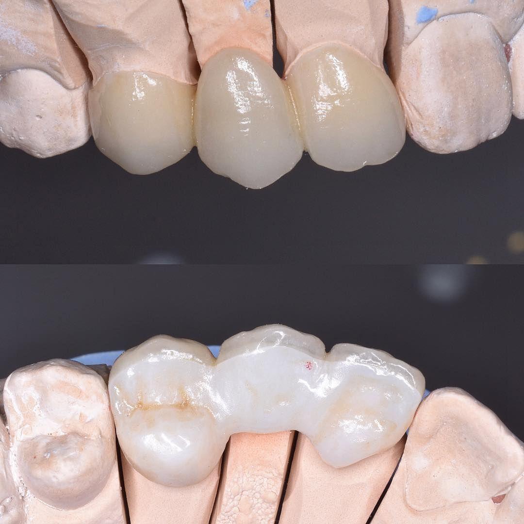 Dental Bridge Dental Bridge Dental Dental Lab