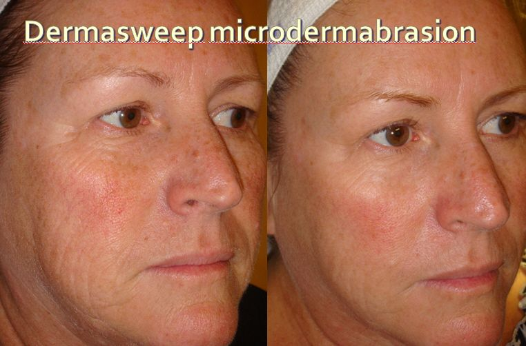 Pin by Julieth Tenorio on before and after Microdermabrasion