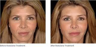 Image result for dermal filler cheeks before after | 50 | Facial