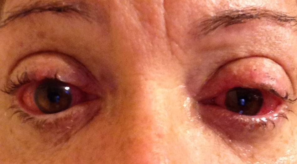 sjogren s syndrome sclera lens treatment sjogrens pinterest severe dry eye. Black Bedroom Furniture Sets. Home Design Ideas