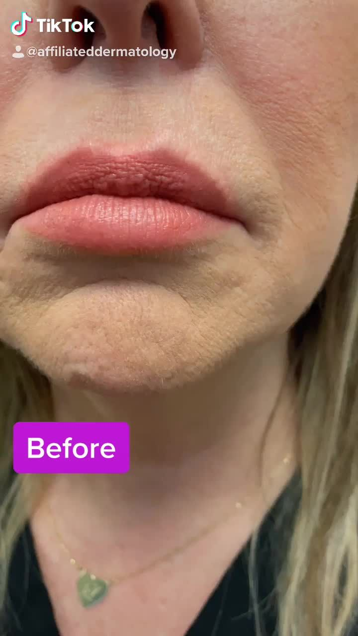 Injectables Affiliated Dermatology Video Video In 2020 Lip Fillers Aesthetic Dermatology Natural Lips