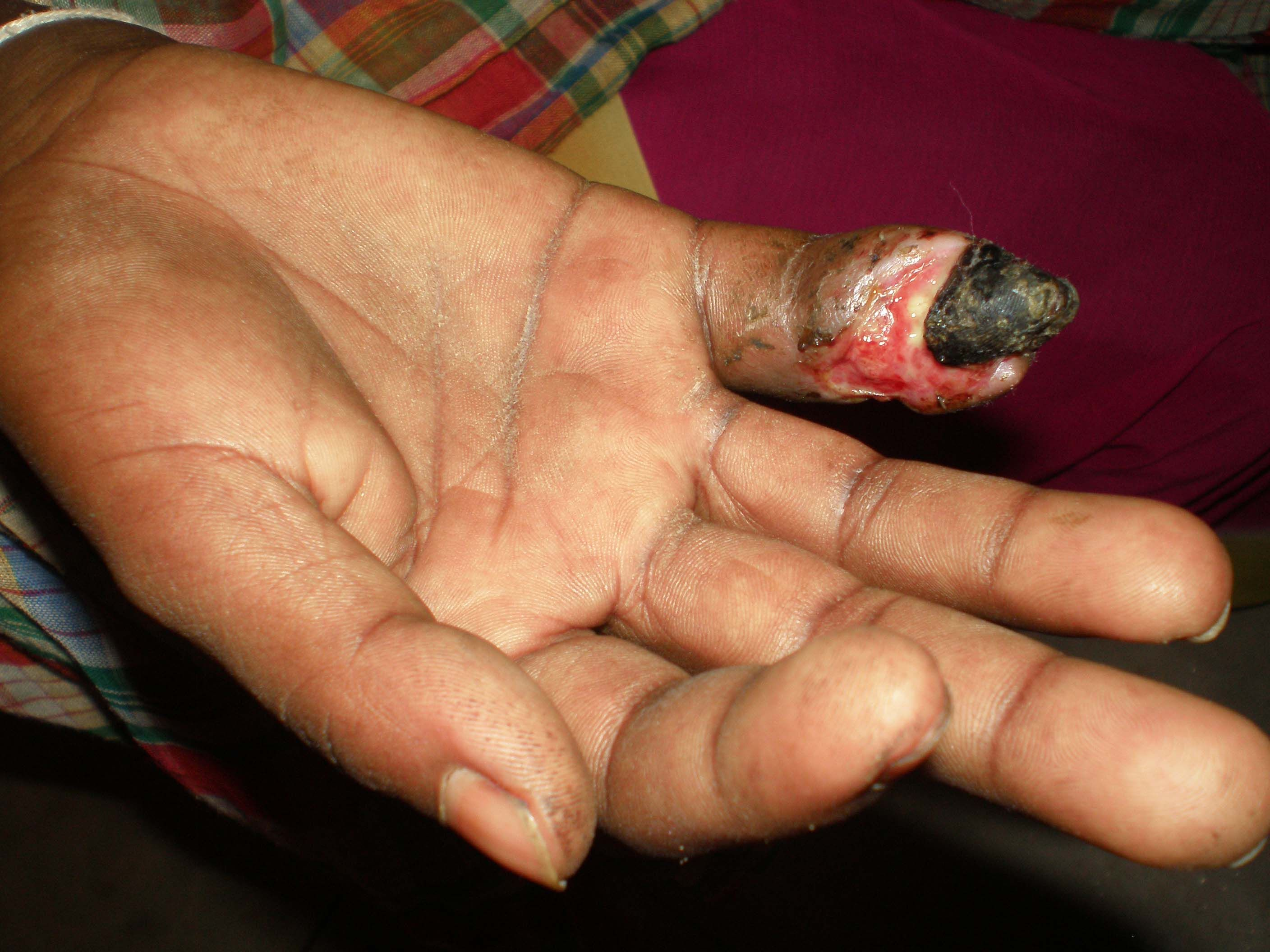 Snake Bites Pictures   Effects of a snake bite on the finger ...