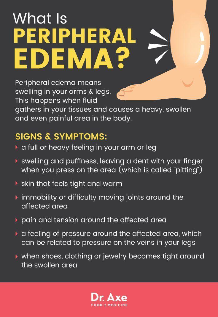 Peripheral Edema Symptoms + 7 Natural Treatments -