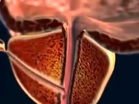 Video Of Prostate Message