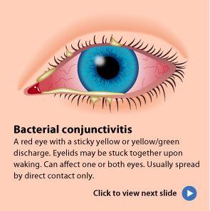 3 Types Of Pink Eye Conjunctivitis Treatments Pink Eyes Eye