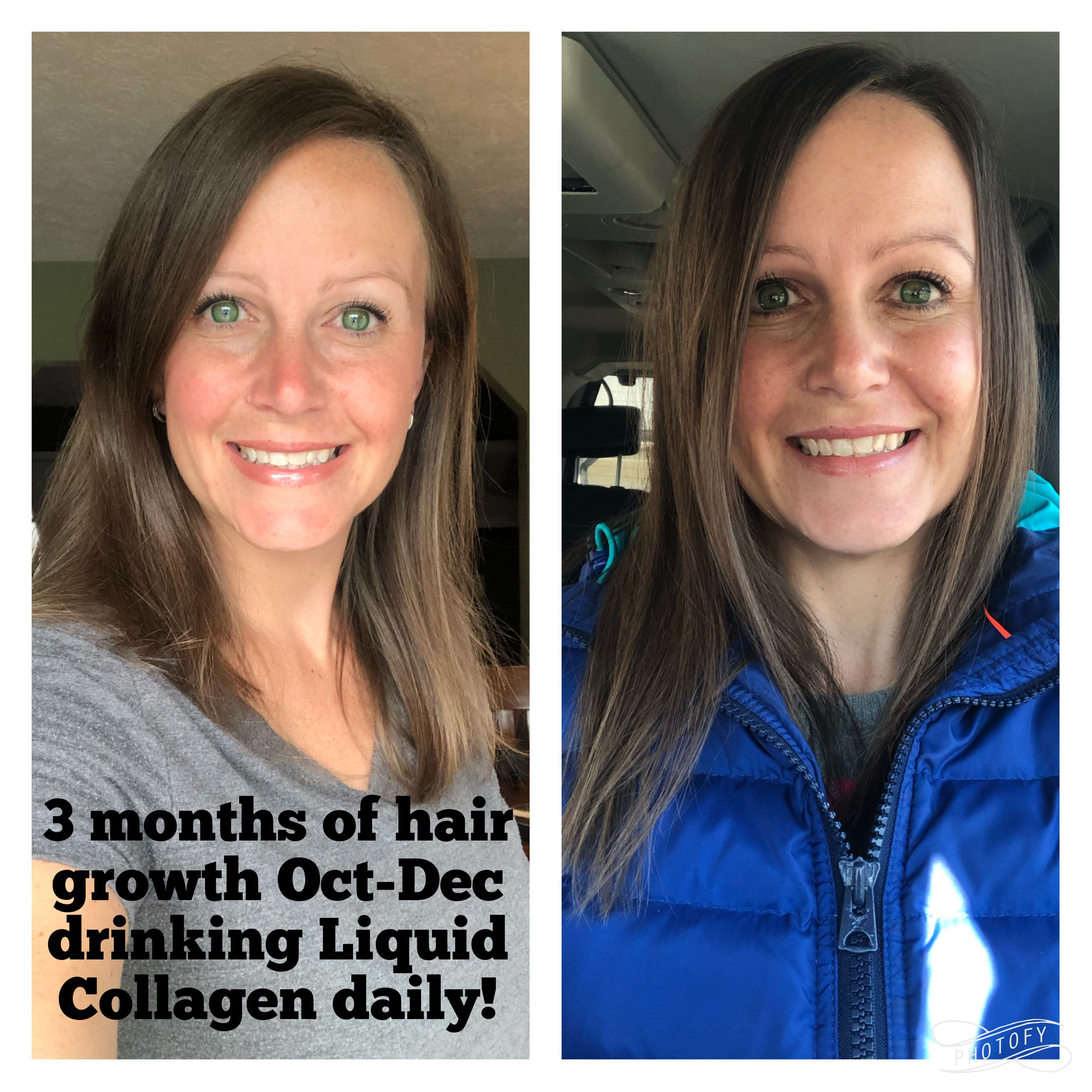 44+ Liquid collagen for hair growth trends