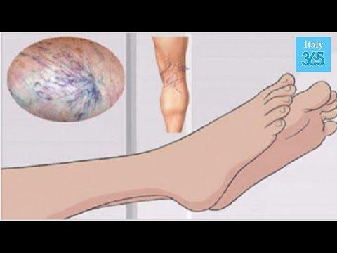 preparate din varicite pe picioarele ieftine