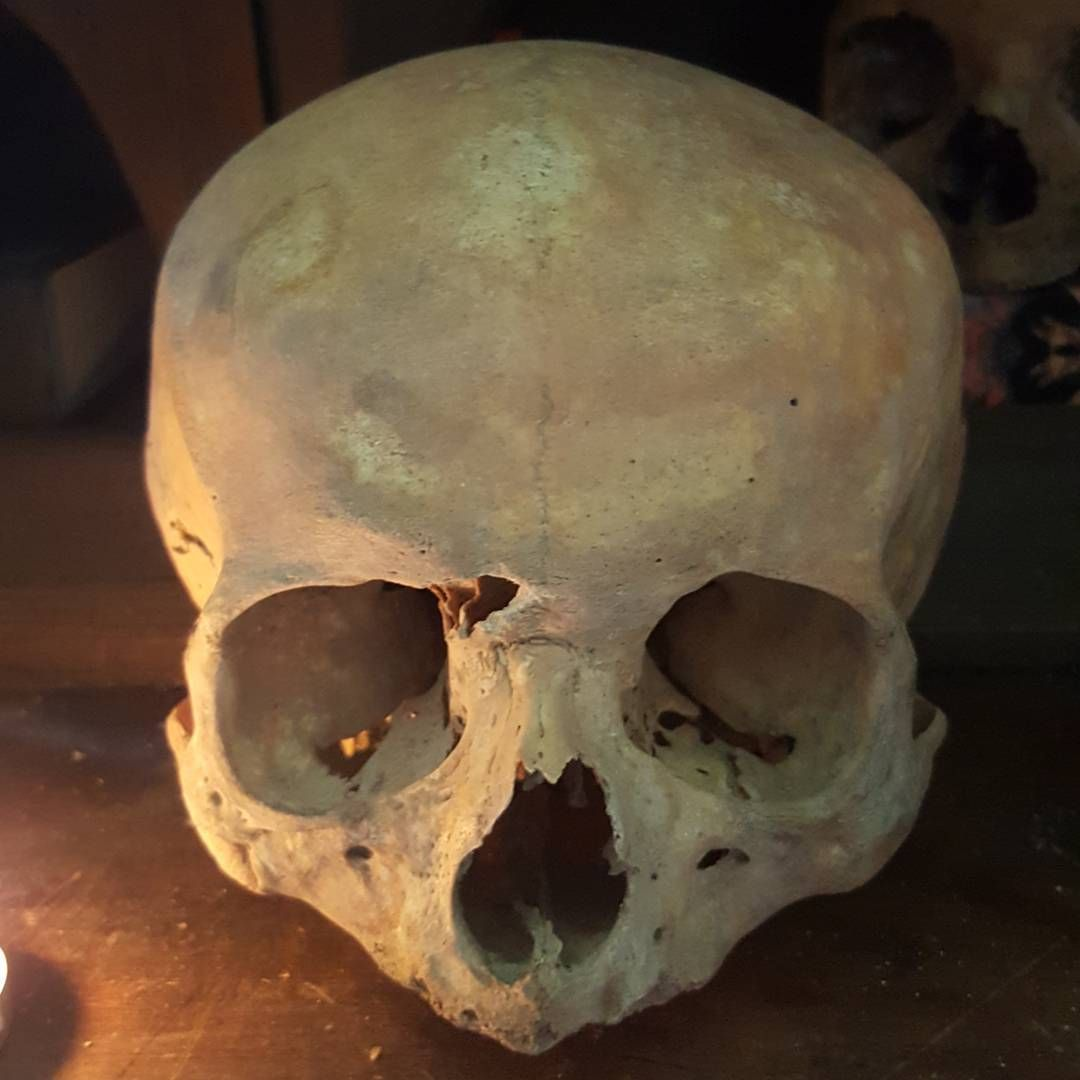 Pin by AlmostTony on Real Human Skulls   Pinterest   Real human ...