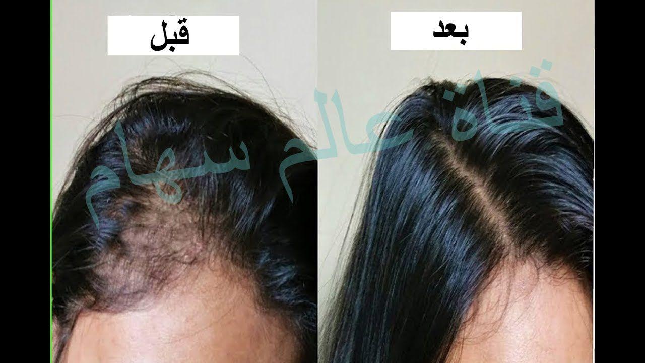 شعرك يتساقط بغزارة اوقفي التساقط على الفوربوضعك لهذا المكون على شعرك ساعتين ليصبح قوي وكثيف Youtube Youtube Behind Ear Tattoo Ear Tattoo