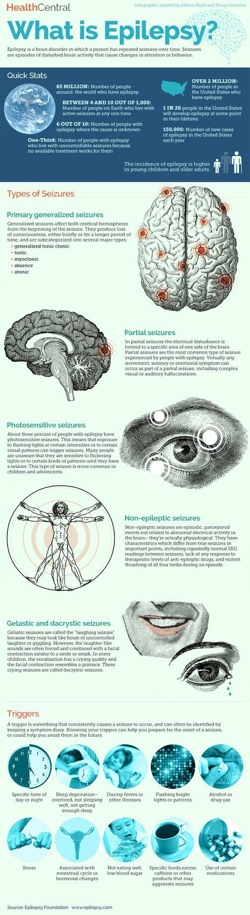 is Epilepsy? (Infographic) Epilepsy is the most common brain disorder and it can be triggered by alcohol or drug useEpilepsy is the most common brain disorder and it can be triggered by alcohol or drug use