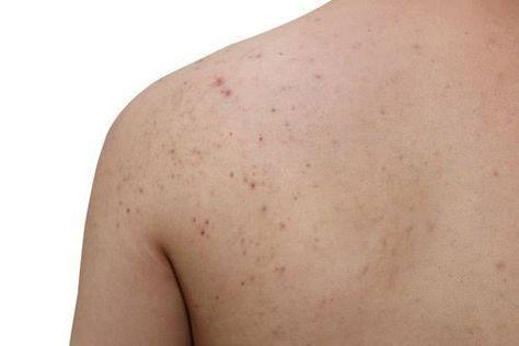 Lisez cet article et vous découvrirez plusieurs remèdes naturels qui peuvent vous aider à traiter et à éliminer l'acné sur ces parties de votre corps.