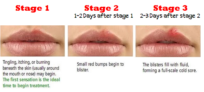 7 Cheapest Natural Ways To Get Rid Of Cold Sores Recipe No 5
