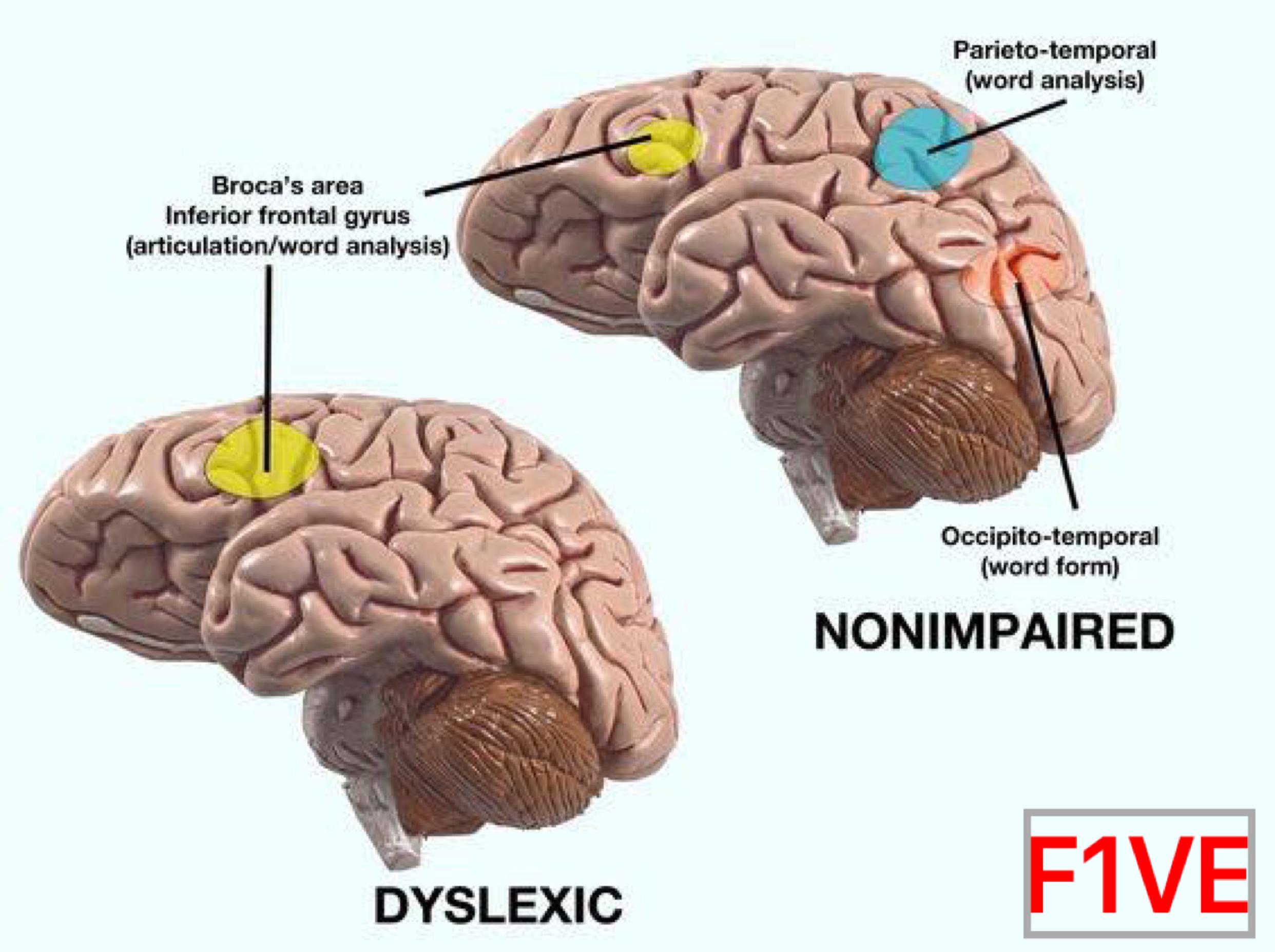 how to read like dislexia