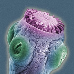 Tapeworm Parasite >> Pin On Science