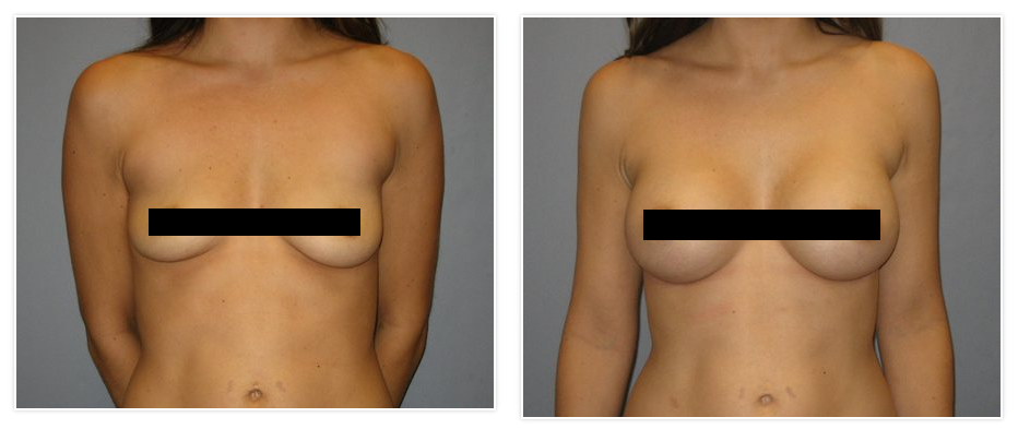 Size c silicone breast implants