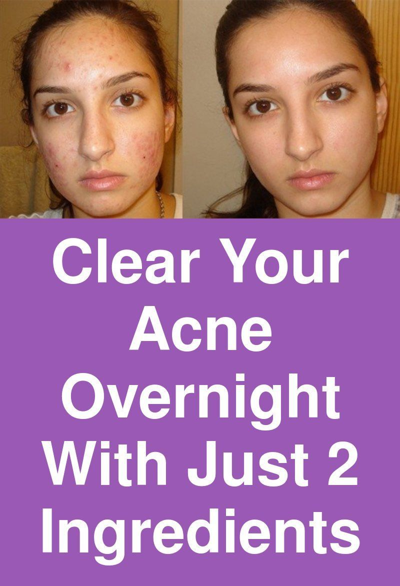How To Get Rid Of A Growing Pimple Overnight
