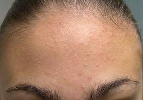e64e0d3cc8a La beauté naturelle  comment enlever les microkystes au visage  naturellement   2 recettes naturelles pour éliminer les micro-kystes