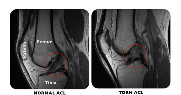ACL reconstruction Surgery Current trends in ACL