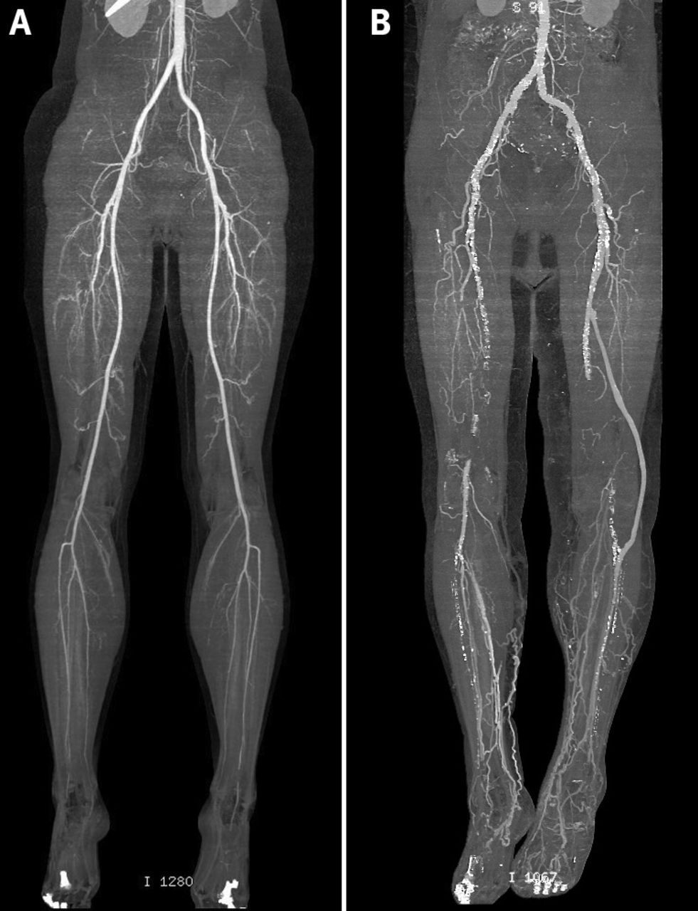 Computed tomography angiograms showing (A) normal lower limb ...