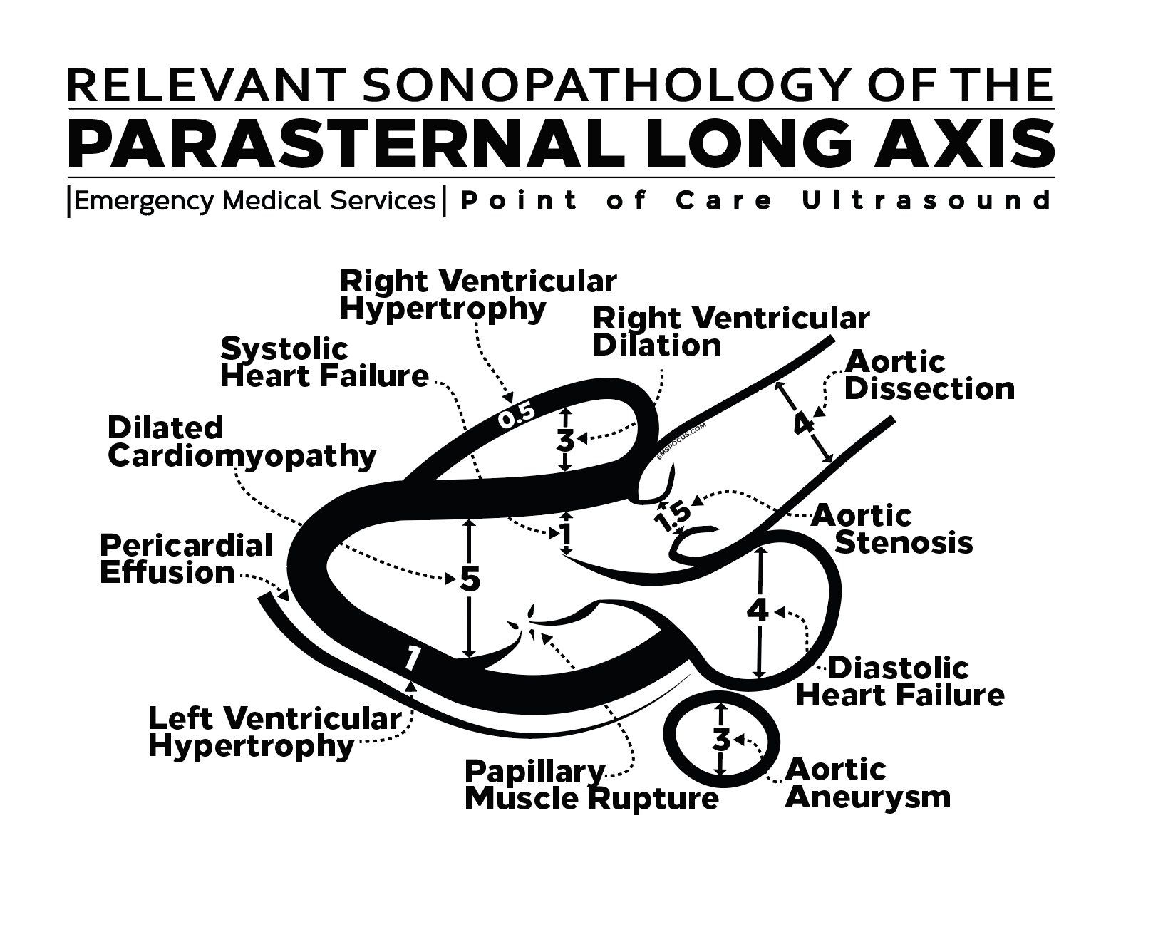 Pin by Brienna Blenkle on study Cardiac sonography