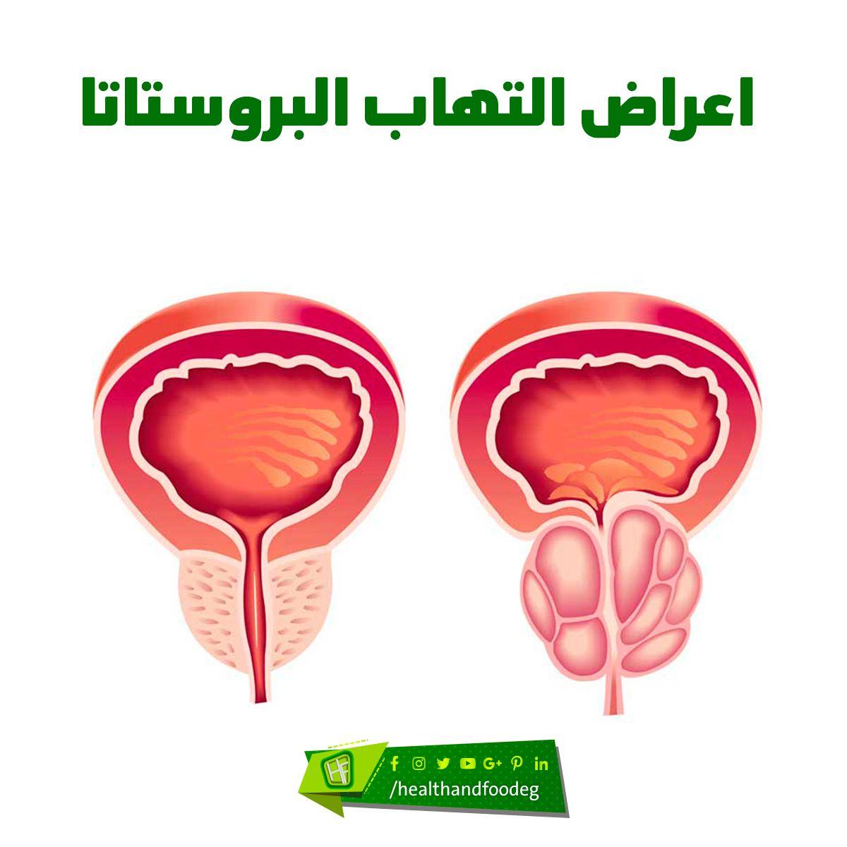 اعراض البروستاتا عند النساء Vegetables Food Radish