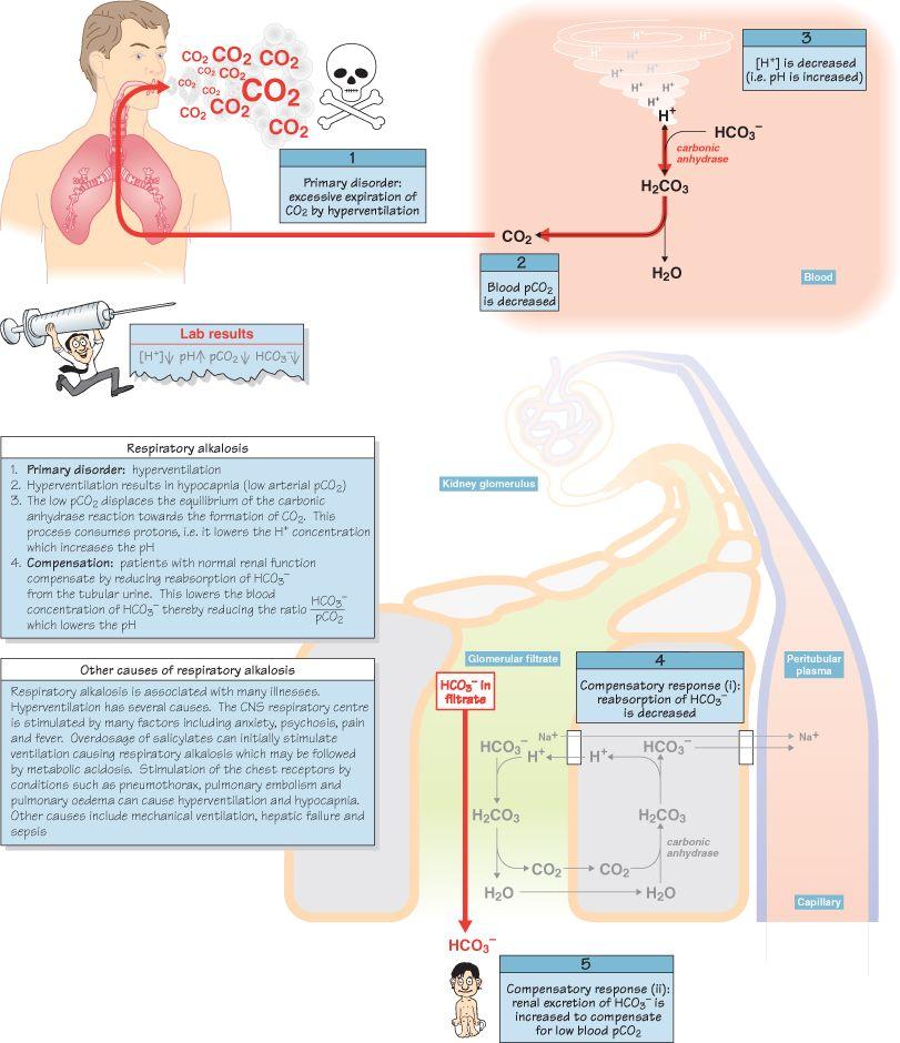 Respiratory Alkalosis Icu nursing, Nursing school