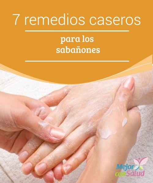 7 Remedios Caseros Para Los Sabañones Mejor Con Salud Remedios Caseros Remedios Como Cuidar Las Manos