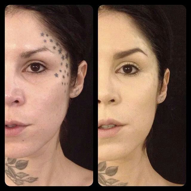 B4 & after of 1 thin layer of kat von d\'s look-it foundation | kat ...