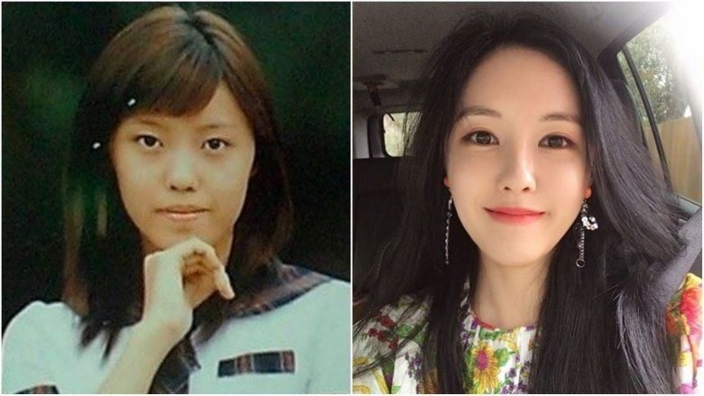 K Pop Stars Before And After Plastic Surgery Plastic Surgery Beauty Hacks Cosmetic Surgery