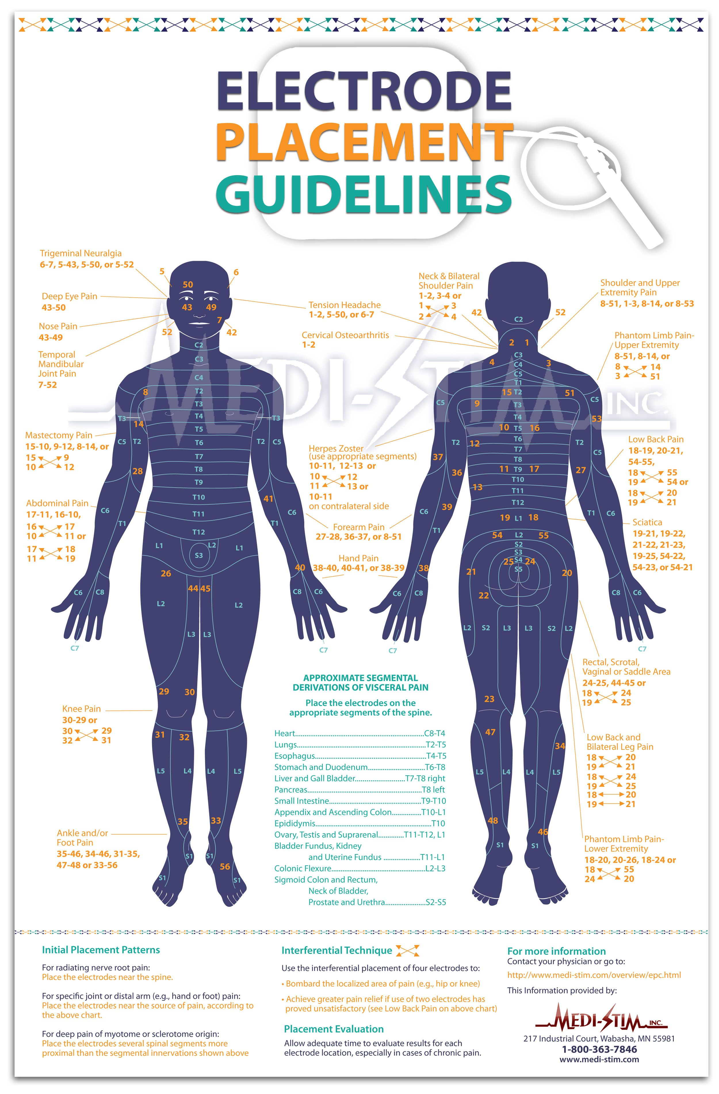 Tens Placement Guide With Images Tens Electrodes Tens Electrode Placement Tens Unit Placement
