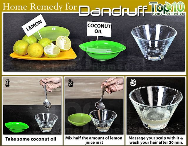 how to remove dandruff naturally at home