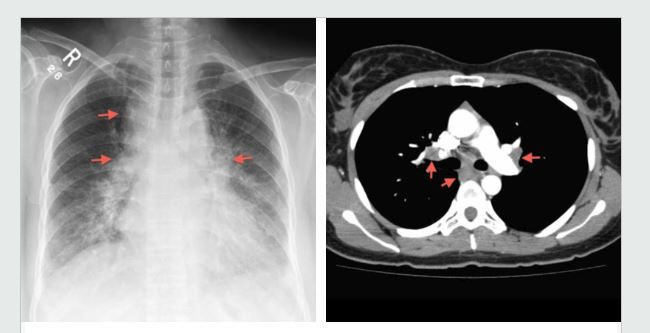 Garland triad - a chest radiograph sign of sarcoidosis. It refers to a  triad of lymph node enlargement; right paratracheal, right hilar and left  hilar.