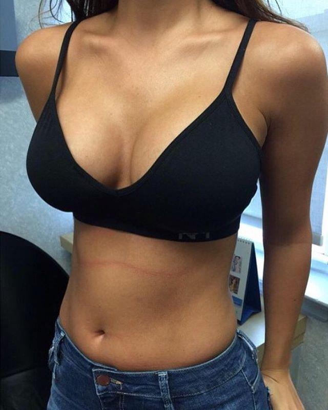 What clouthes wear after breast augmentation