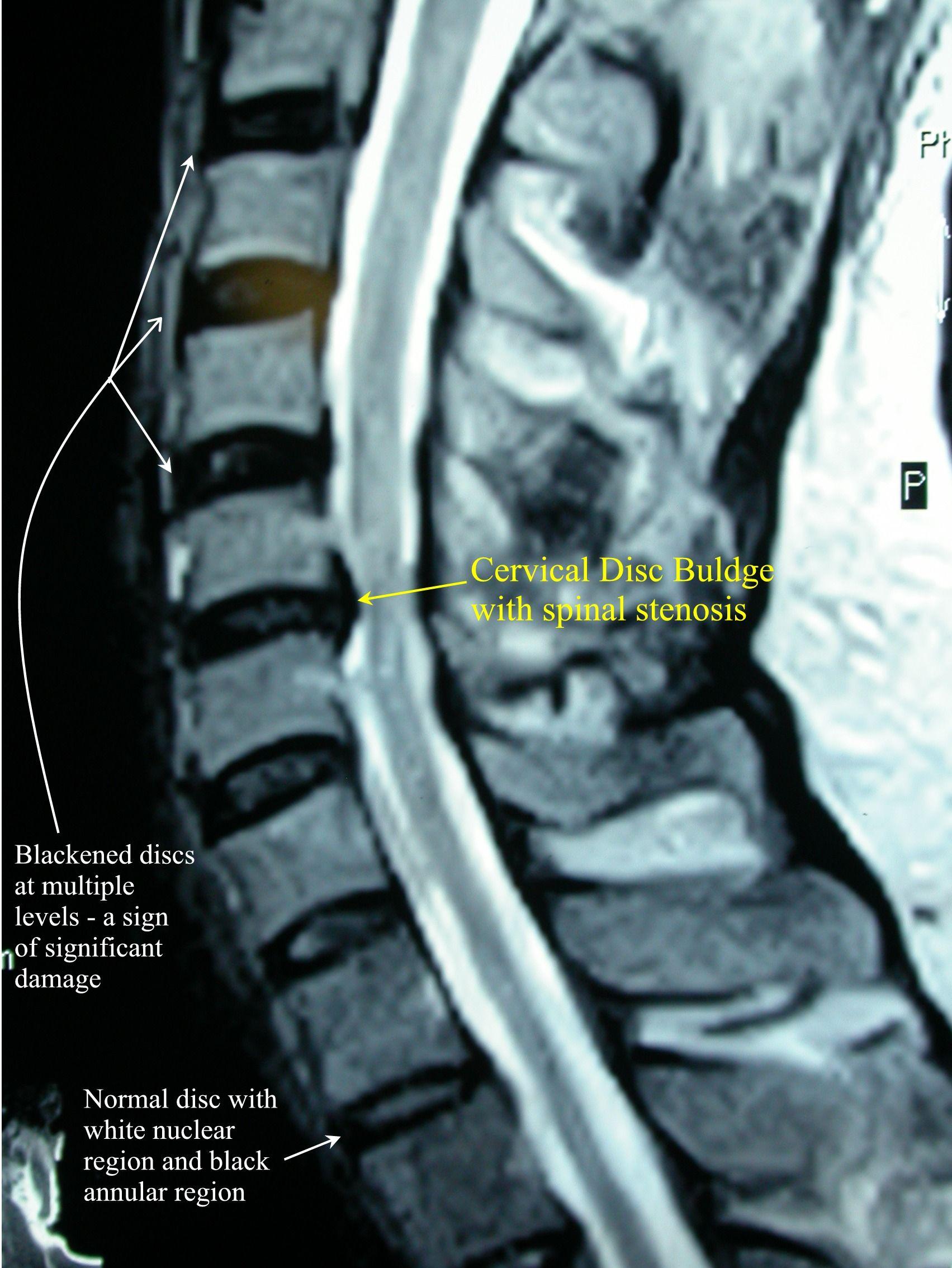 Cervical Herniated Disc | Herniated disc. Herniated. Cervical disc