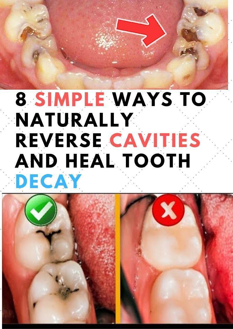 Vulgar Tooth Decay Mouths teethwhiteningmiami