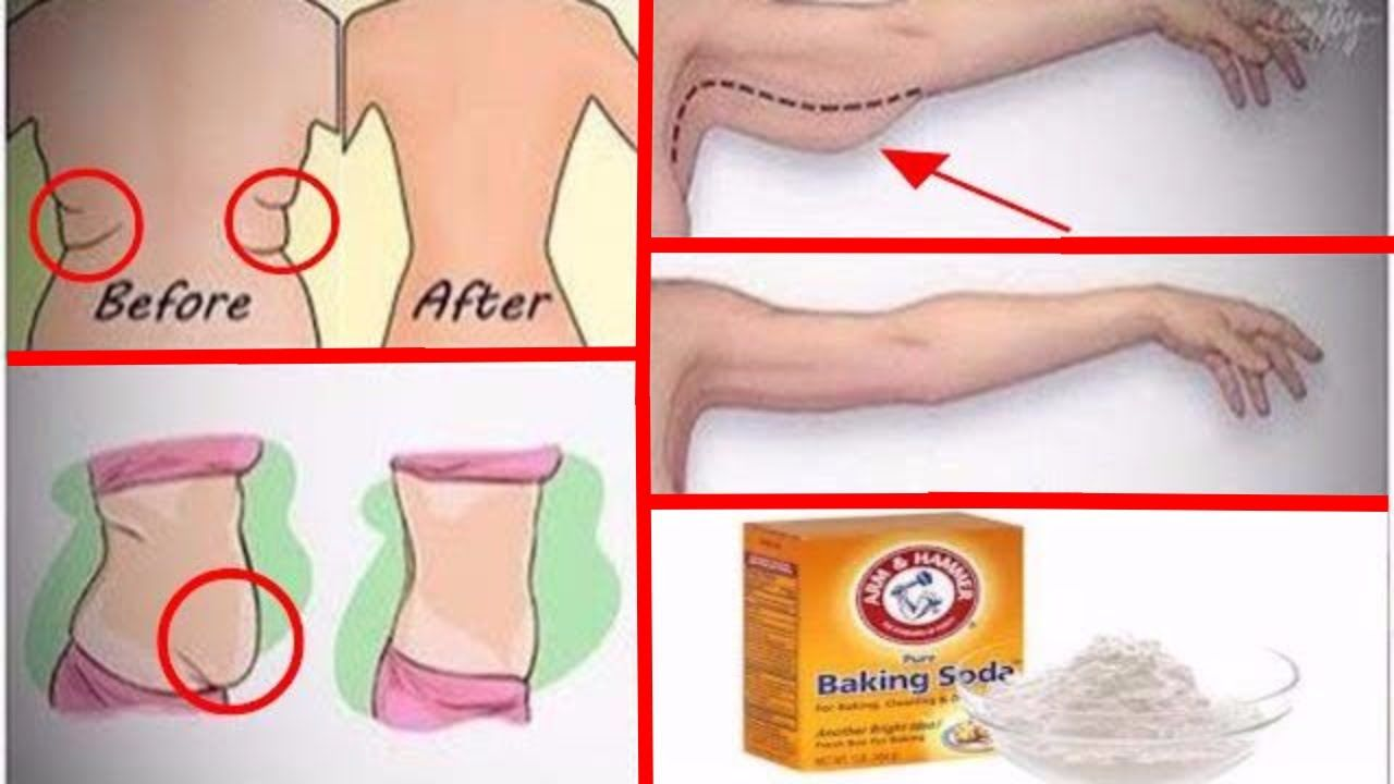 Fat burning injections before and after