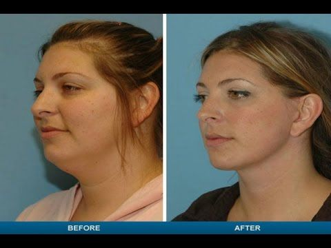 ▷ Liposuction Before And After Plastic Surgery For Neck Lift ...